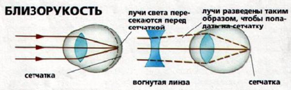 Подбор очков при близорукости, дальнозоркости, астигматизме